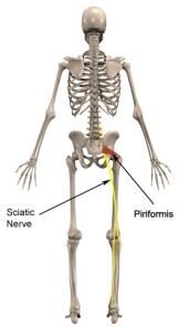 piriformis       syndrome        Gareth Davies